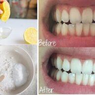 Cách làm trắng răng tại nhà siêu tiết kiệm mà lại rất hiệu quả1